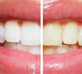teeth whitening dentist durbanville
