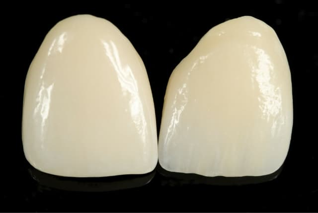dental crowns bellville