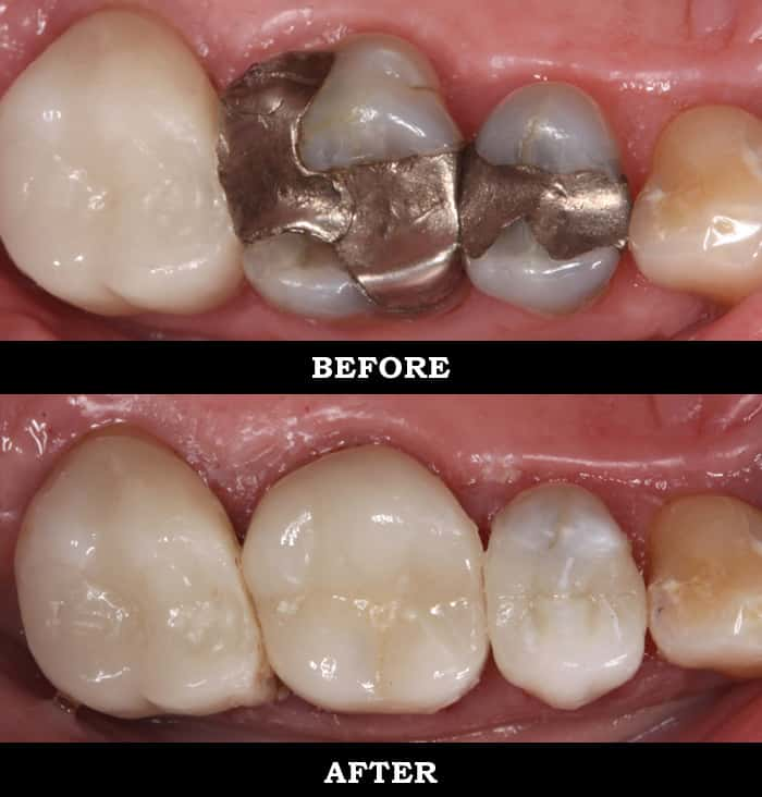 metal free crowns bellville
