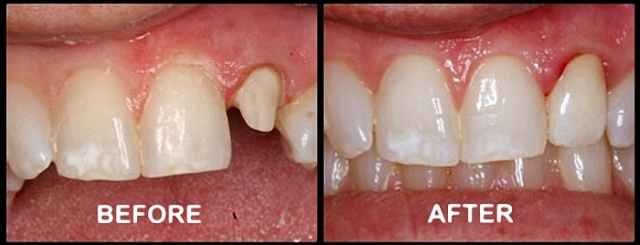 metal free ceramic crowns cape town