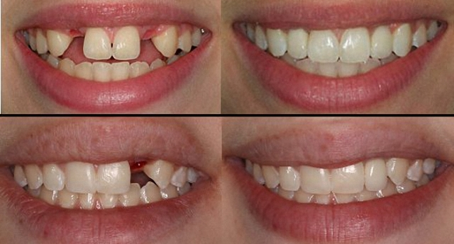 teeth implants brackenfell