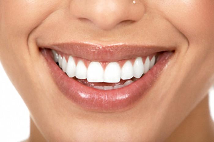 partial dentures bellville