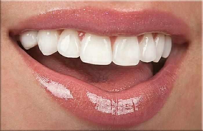 partial dentures brackenfell