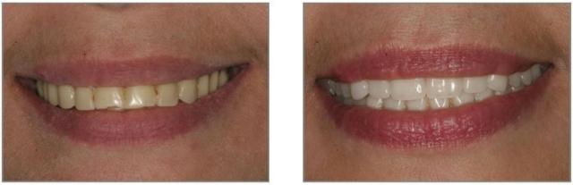 partial dentures kuils river