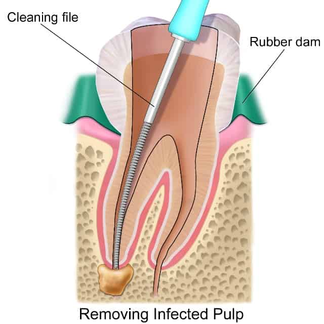 root canal treatment bellville