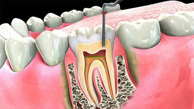root canal therapy brackenfell
