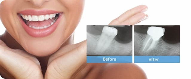 root canal therapy durbanville