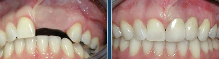 dental implants cape town