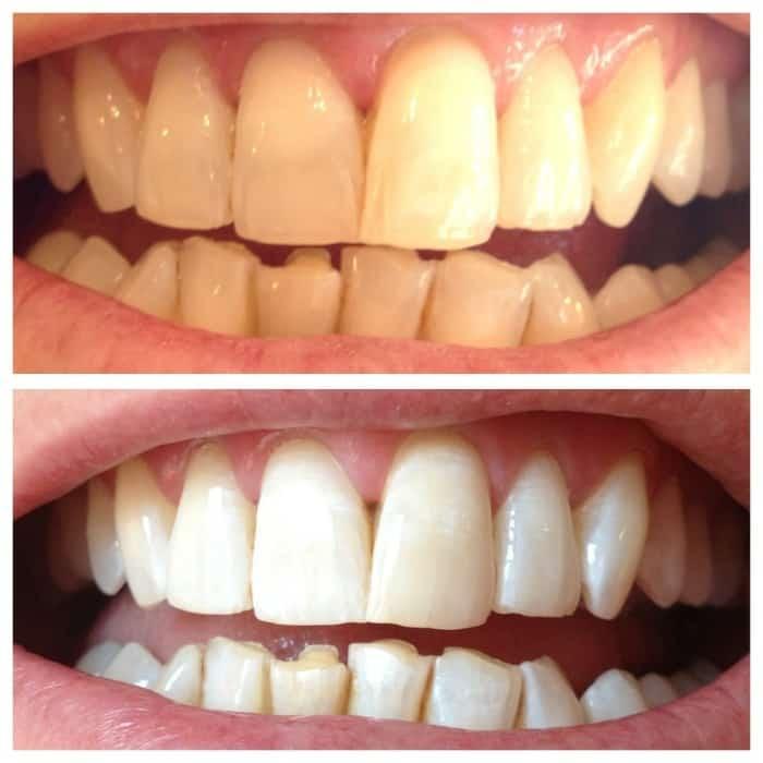 teeth bleaching bellville