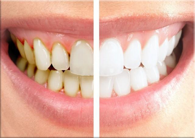 Teeth Whitening Bellville