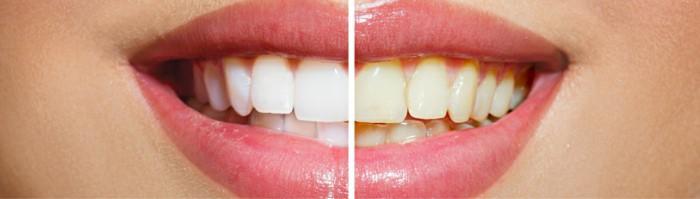 cosmetic dentist brackenfell