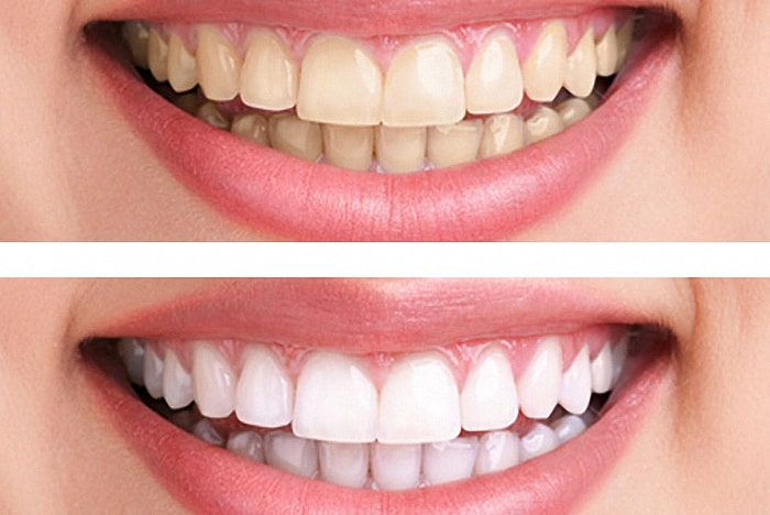 cosmetic dentist kuils river