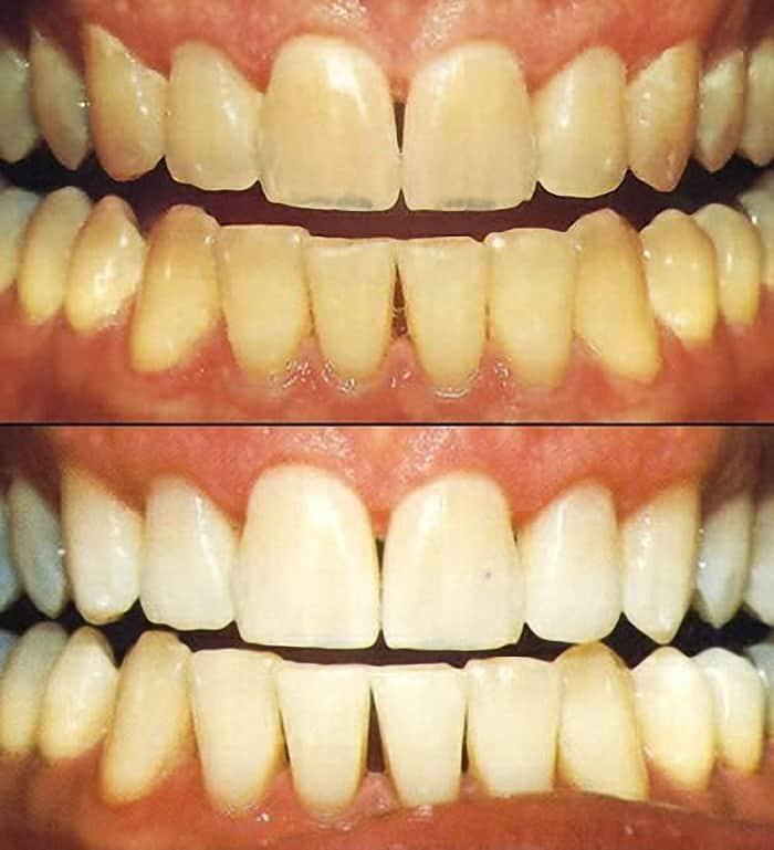 cosmetic dentist durbanville