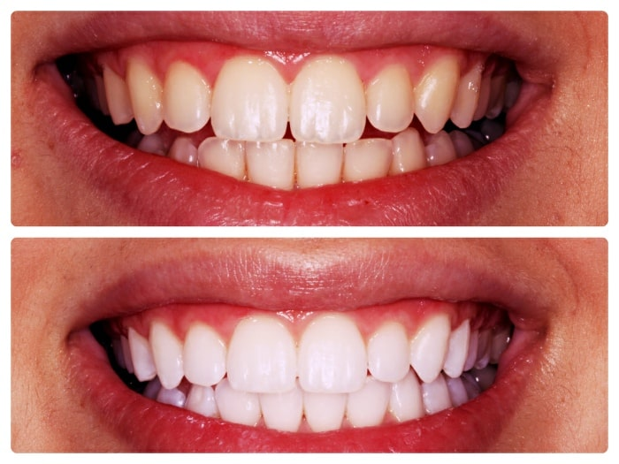 cosmetic dentist somerset west